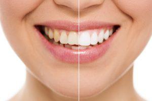 Zähne Sandstrahlen